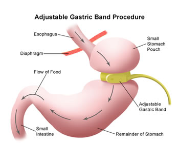 adjustable-gastric-band